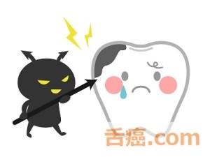 虫歯は舌癌に良くない