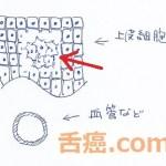 上皮内癌の図
