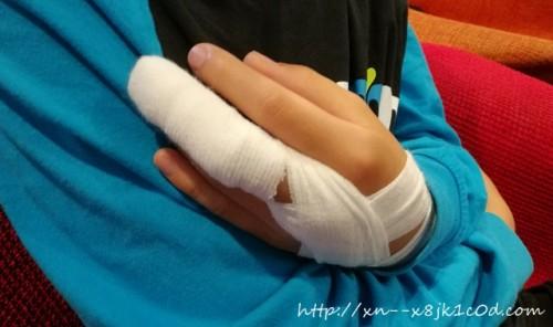 指を挟んだ!外科で処置後の写真