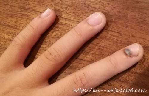 指を挟んだ!痛い画像