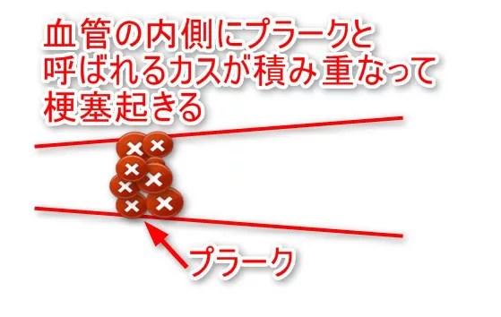 脳血栓症イメージ
