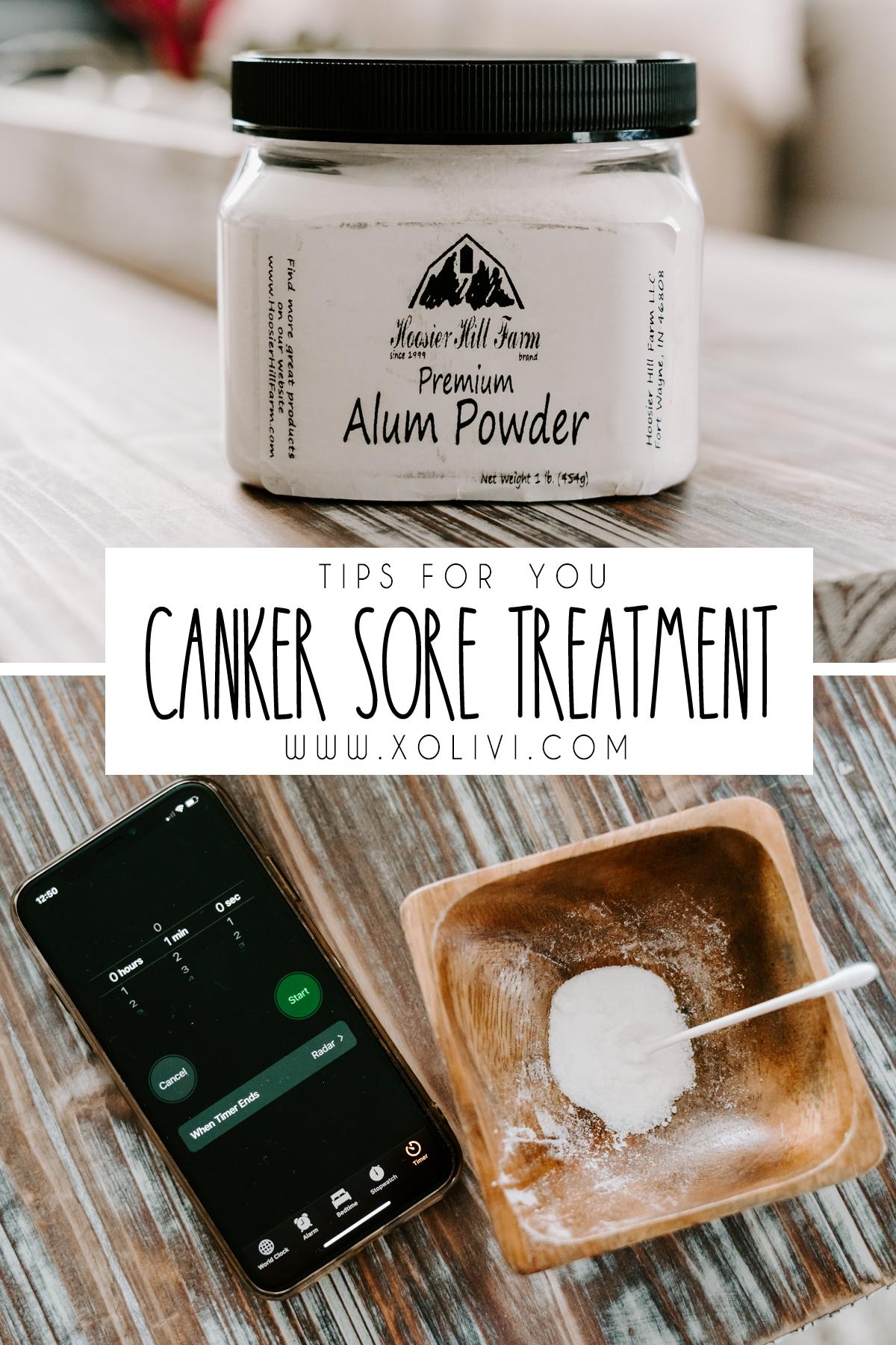 canker sore treatment