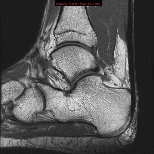 Peroneus Tendon Mri Ankle Longus