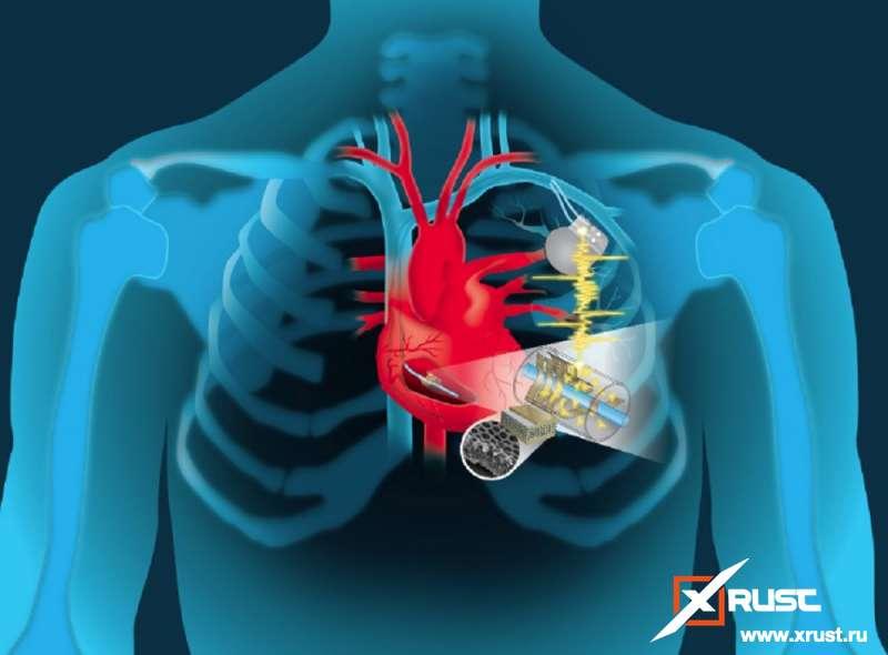 Сердце и гаджеты, спасающие его
