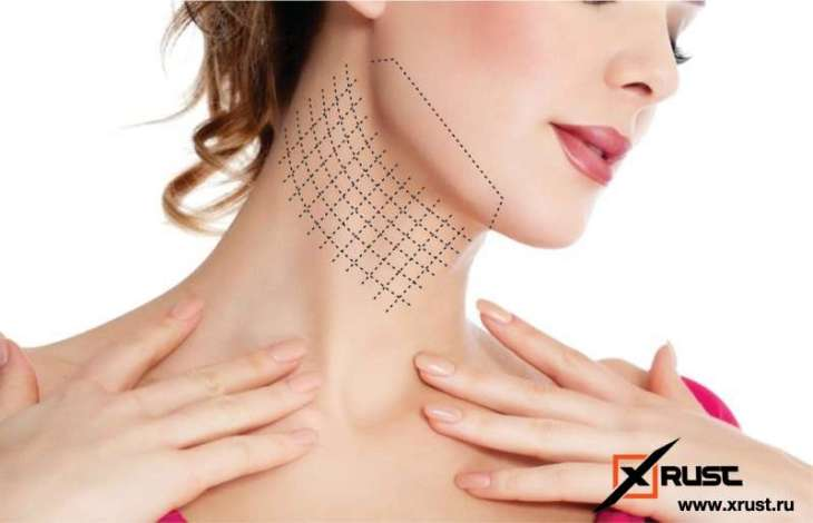 Подтянем контур лица: солевая повязка красоты