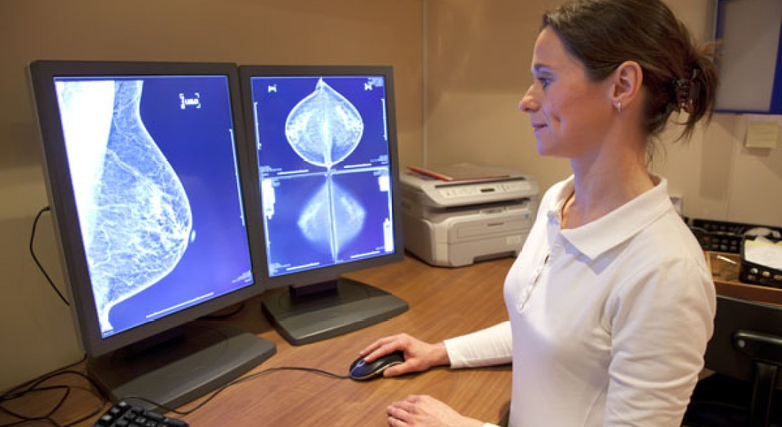 Breast Cancer Gene Discovery Could Make Personalized Medicine A Reality
