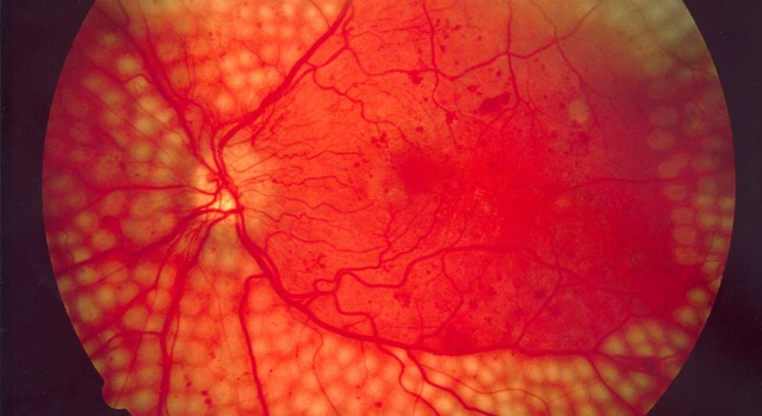 New Technology Allows Earlier Detection of Eye Disease