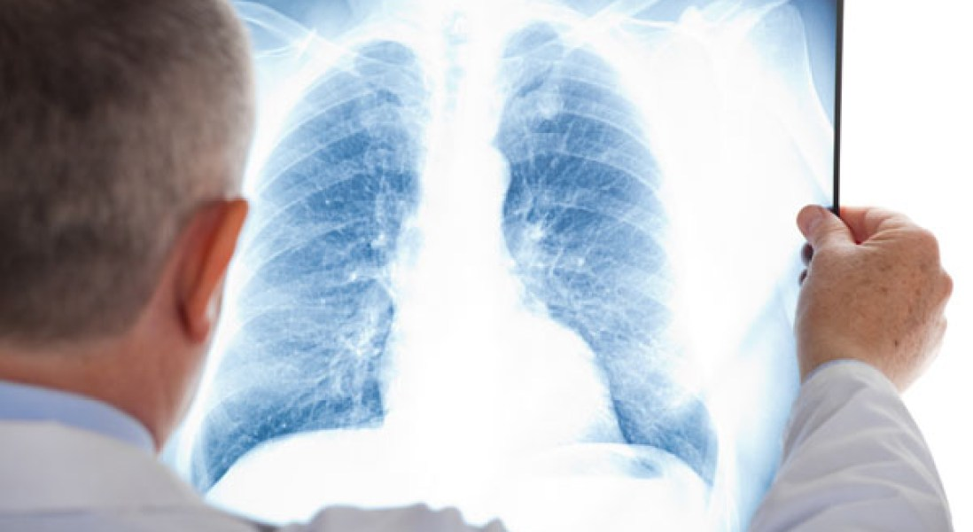Roche's Lung Cancer Drug Shows Promise