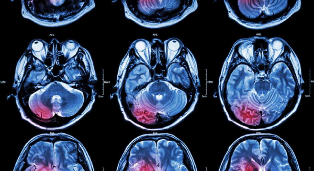 Neuroprotective Compound Could Offer New Treatment For Huntington's Disease
