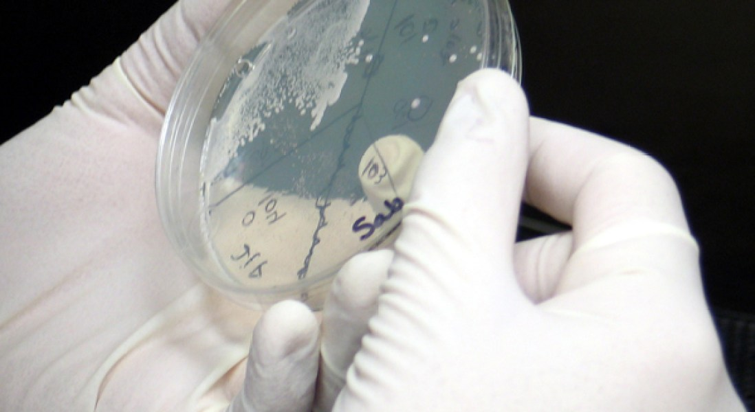 Researchers Work Towards Building a Fully-Synthetic Yeast Genome