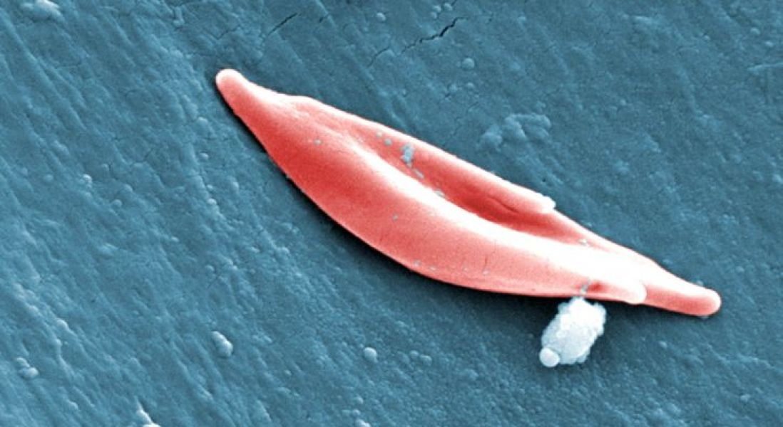 First New Treatment in Two Decades for Sickle Cell Disease Approved by FDA