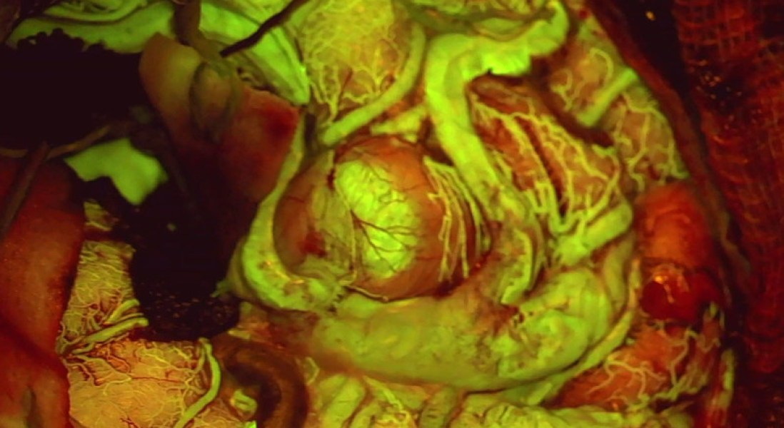 Leica's Fluorescence Microscope Filter Helps Surgeons See Blood Flow in the Brain