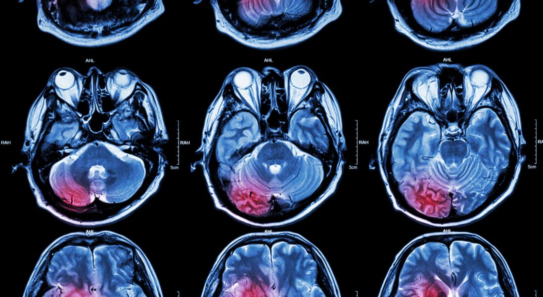Alzheimer's Disease Associated with Strains of Herpes Virus