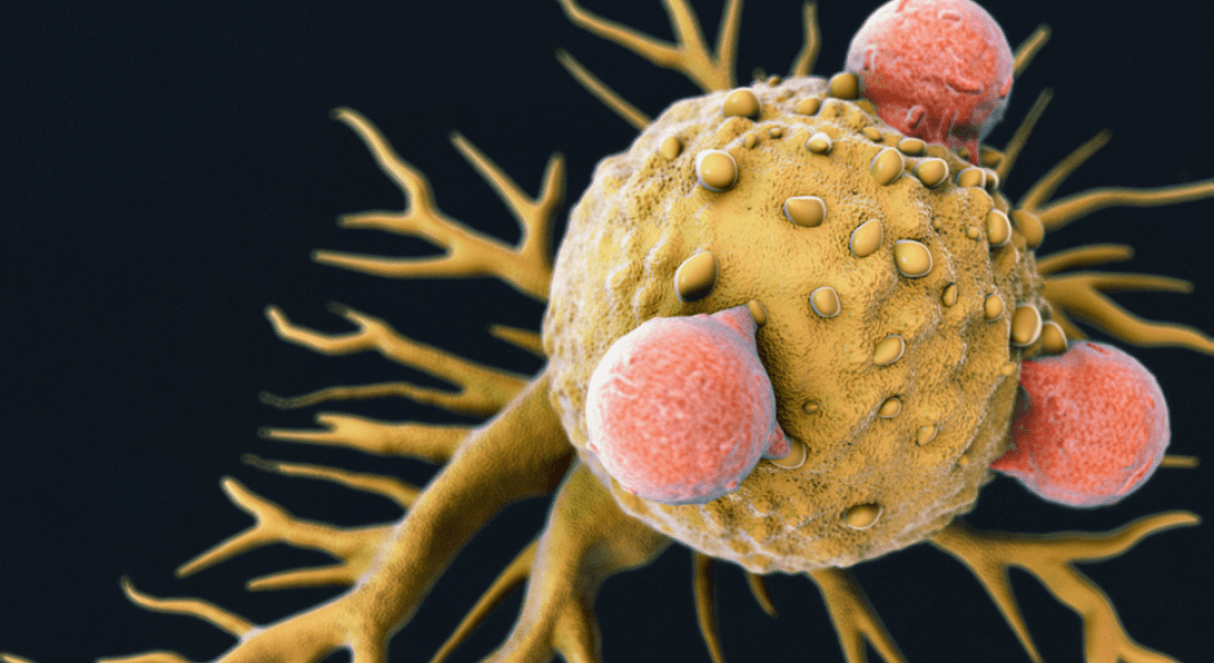 """First of its Kind """"Universal"""" Immune Cell Cancer Therapy"""