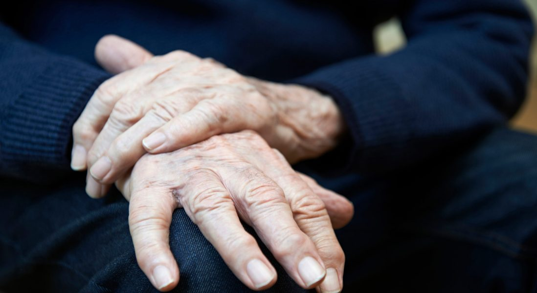 Parkinson's and Melanoma Share an Amyloid Link, Says New Research