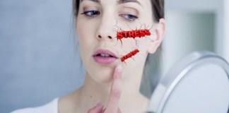 10 sinais de que a sua pele está sofrendo os efeitos do estresse