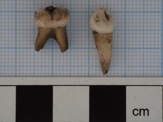 Human deciduous teeth