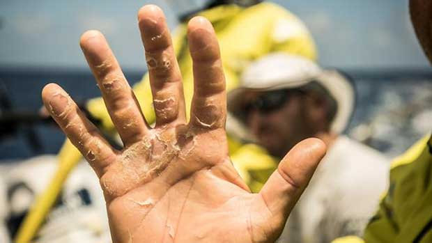 Day 10, Leg 2, Lisbon to Cape Town, Bouwe Bekking shows us his hand after 10 days of racing, 14 November, 2017 – Volvo Ocean Race © Rich Edwards / Volvo Ocean Race
