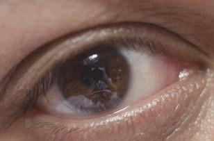 花粉症の方は、目薬で市販薬を買う時は選び方に注意して下さい。