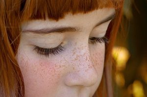 freckle_005