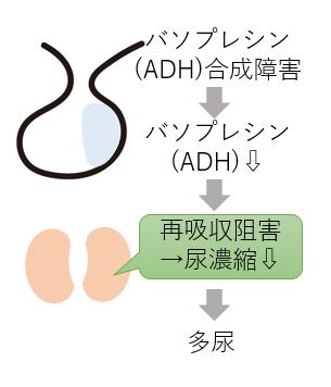中枢性尿崩症 バソプレシン 多尿