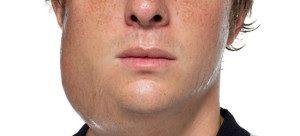 Afectiuni ale glandelor salivare