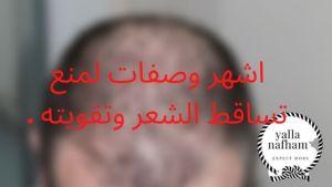 افضل طرق منع تساقط الشعر وتكثيفه .