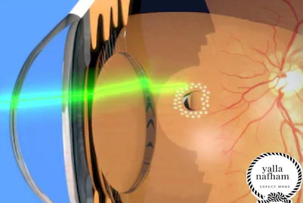 علاج الذبابة الطائرة في العين