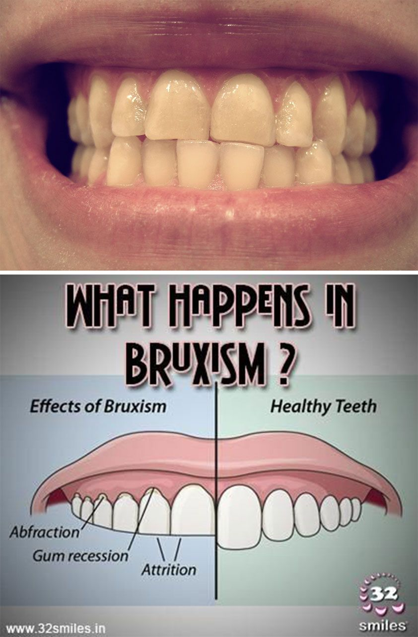 Grinding your teeth grinding teeth bruxism jaw clenching