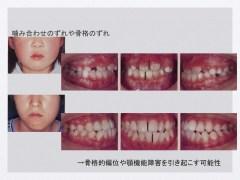 噛み合わせのずれや骨格のずれ→骨格的偏位や顎機能障害を引き起こす可能性