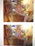 ギックリ腰の施術方法 その2