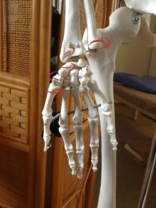 股関節痛(手根骨)