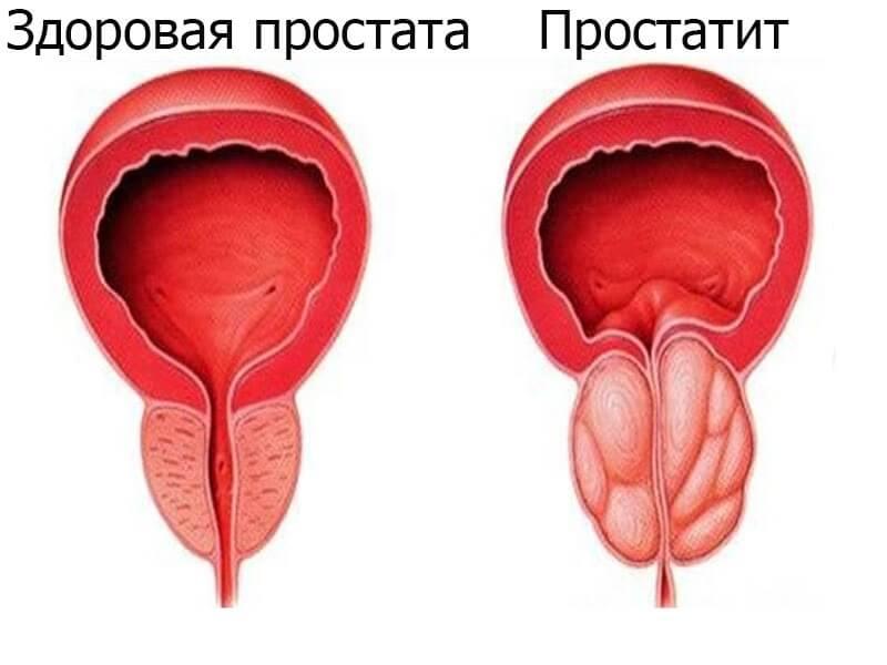 pimafucht krem penisa przyczyny montażu nieobecności