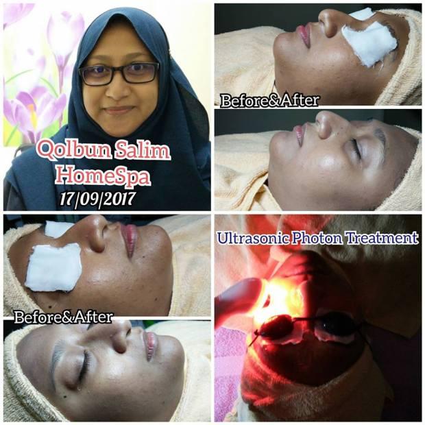 Facial bersama Qolbun Salim HomeSpa