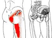 狭窄症の治療
