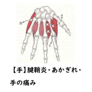 腱鞘炎・あかぎれ・手の痛み