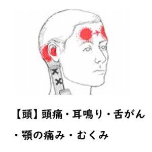頭痛・耳鳴り・舌がん・顎の痛み・むくみ