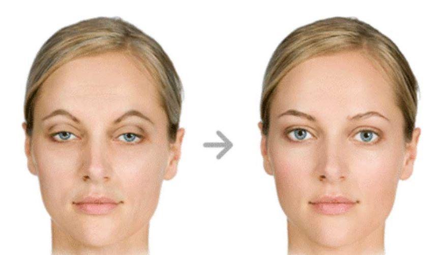 Göz Kapağı Düşüklüğü ve Ameliyatı