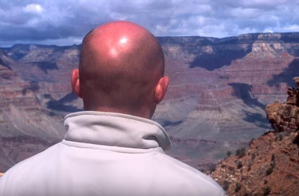 Saç Dökülmesini Engelleyen Yağ Karışımı