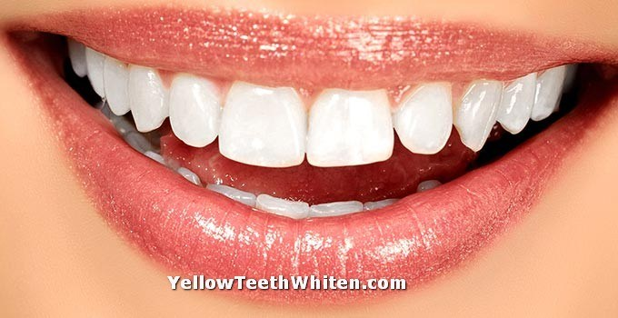 Yellow Teeth Whiten - a general guide for yellow teeth whiten