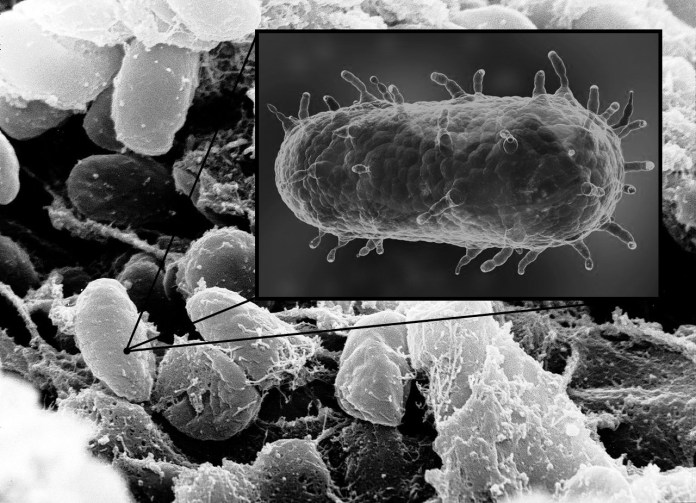 Şekil 7. Vebaya sebep olan Yersinia Pestis bakterisi.