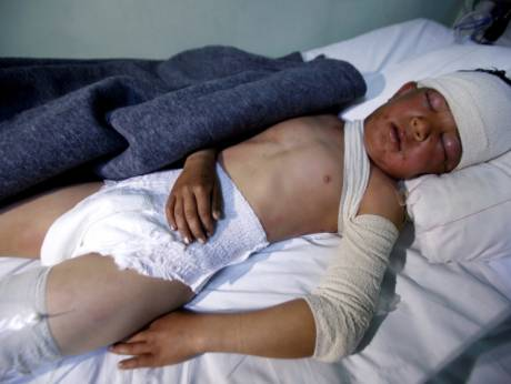 UN: If confirmed, chemical attacks in Mosul a war crime