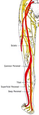 sciatica-137x400.png