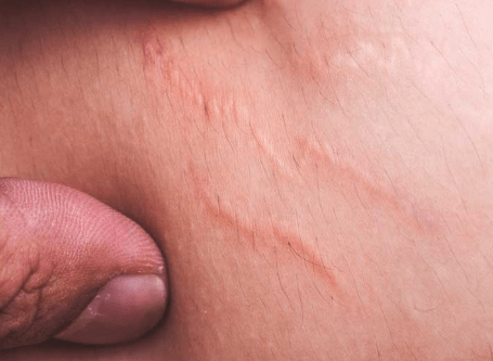 Stretch Marks on Thighs on Teenager Causes and Remedies