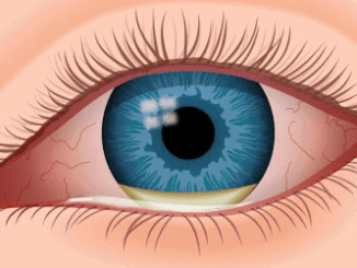common eye infections
