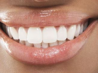 White Spots on Teeth