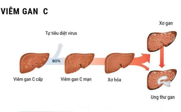 Viêm gan c Phương thuốc đẩy lùi Viêm gan C đã có mặt tại Việt Nam viem gan c