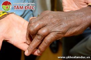 Một số hình ảnh biến chứng của bệnh gút (bệnh gout) bien chung benh gut bien chung benh gout 2ss