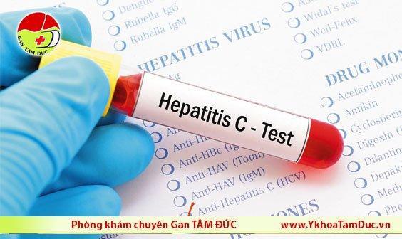 ý nghĩa xét nghiệm viêm gan c anti-hcv hcv-arný nghĩa xét nghiệm viêm gan c anti-hcv hcv-arn