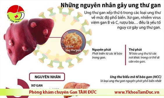 infographic nguyên nhân gây ung thư gan liver cancer cause